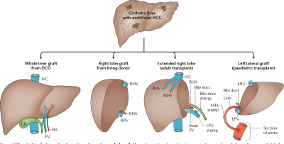 An overview about liver transplant surgery