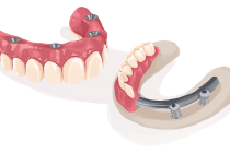 Why Many Teeth Patients Prefer Undergoing Implant Dentistry?