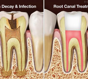 Root Canal Treatment: What is it for?
